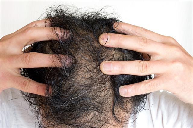 なにが違うの?育毛サロンで行われる育毛とは post thumbnail image
